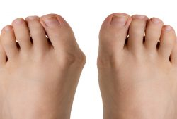 10 Ways to End Bunion Pain Without Surgery