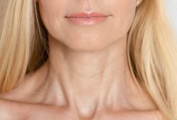 All-Natural Ways to Tighten a Saggy Neck